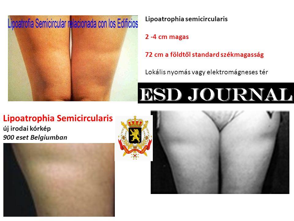 Lipoatrophia semicircularis 2 -4 cm magas 72 cm a földtől standard székmagasság Lokális nyomás vagy elektromágneses tér Lipoatrophia Semicircularis új irodai kórkép 900 eset Belgiumban