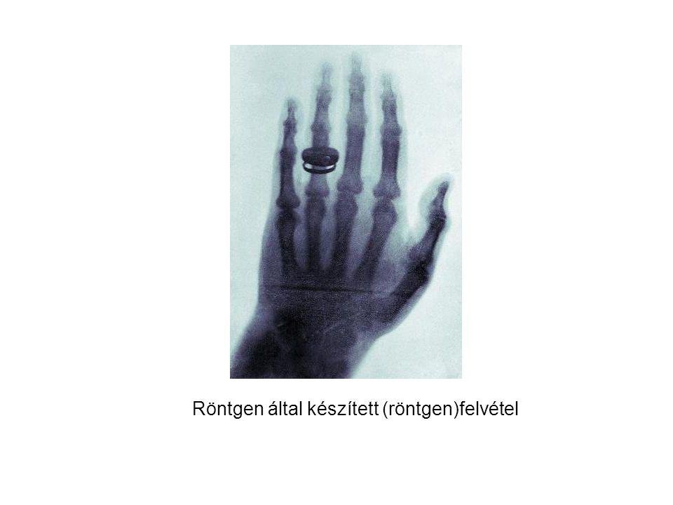 Röntgen által készített (röntgen)felvétel