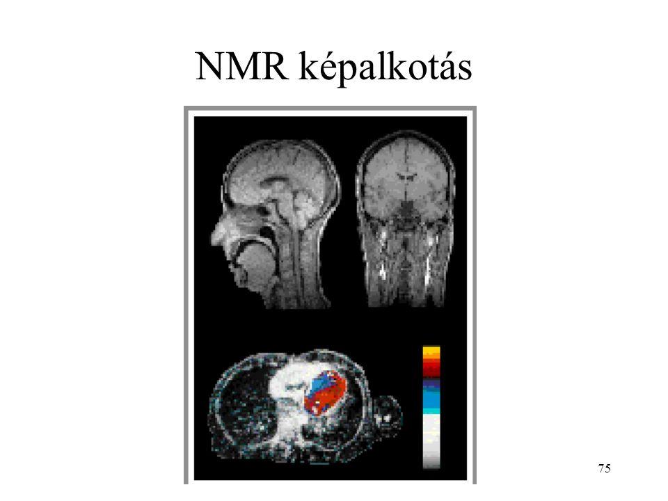 75 NMR képalkotás