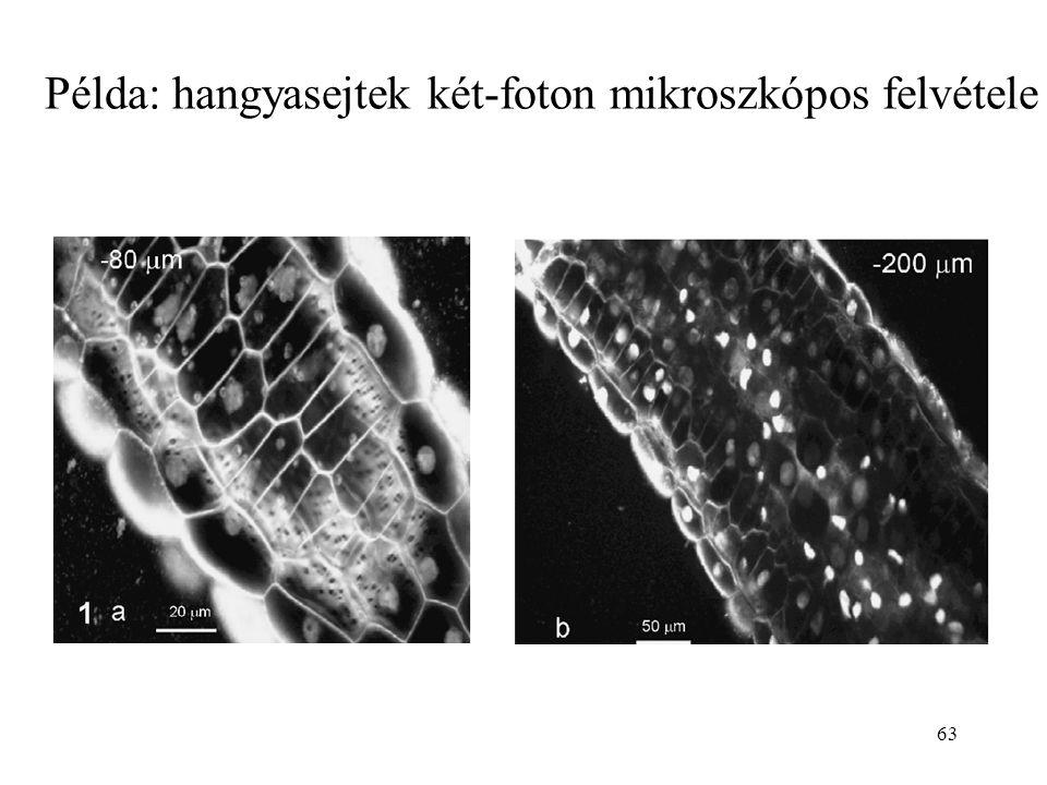 63 Példa: hangyasejtek két-foton mikroszkópos felvétele
