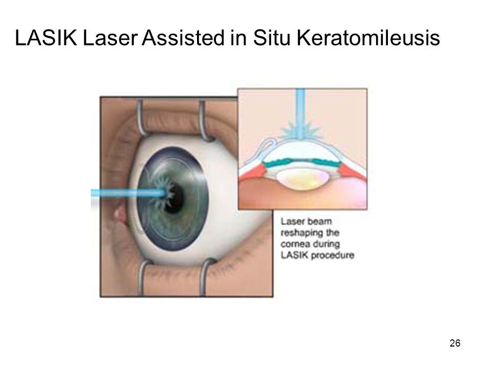 26 LASIK Laser Assisted in Situ Keratomileusis