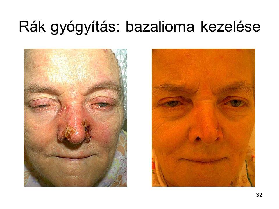 32 Rák gyógyítás: bazalioma kezelése