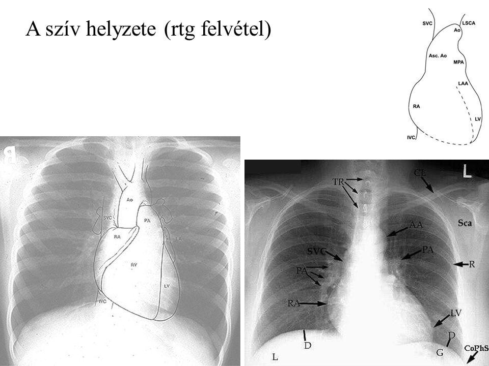 A szív helyzete (rtg felvétel)