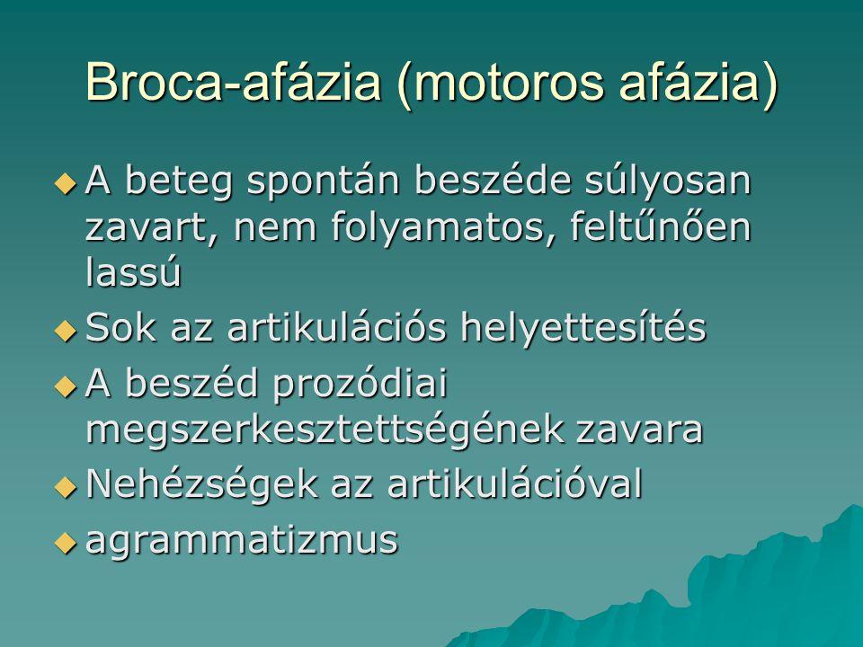 Broca-afázia (motoros afázia)  A beteg spontán beszéde súlyosan zavart, nem folyamatos, feltűnően lassú  Sok az artikulációs helyettesítés  A beszé