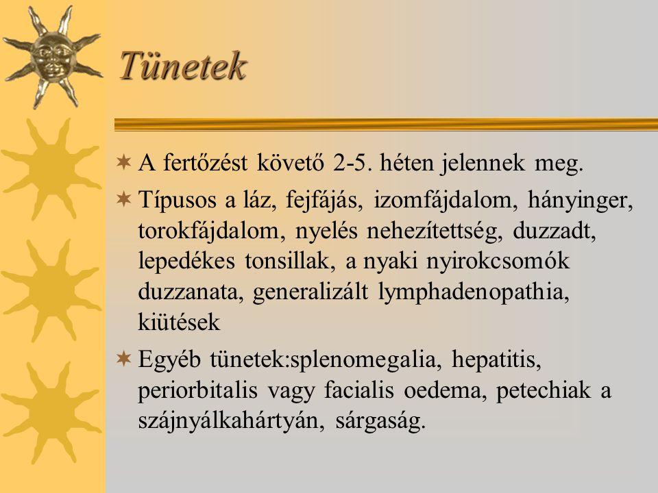 Tünetek  A fertőzést követő 2-5. héten jelennek meg.  Típusos a láz, fejfájás, izomfájdalom, hányinger, torokfájdalom, nyelés nehezítettség, duzzadt