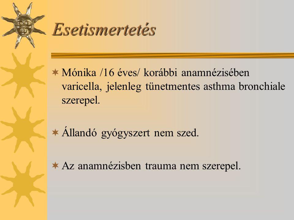 Esetismertetés  Mónika /16 éves/ korábbi anamnézisében varicella, jelenleg tünetmentes asthma bronchiale szerepel.  Állandó gyógyszert nem szed.  A