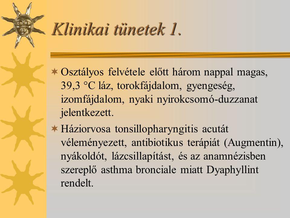 Klinikai tünetek 1.  Osztályos felvétele előtt három nappal magas, 39,3  C láz, torokfájdalom, gyengeség, izomfájdalom, nyaki nyirokcsomó-duzzanat j