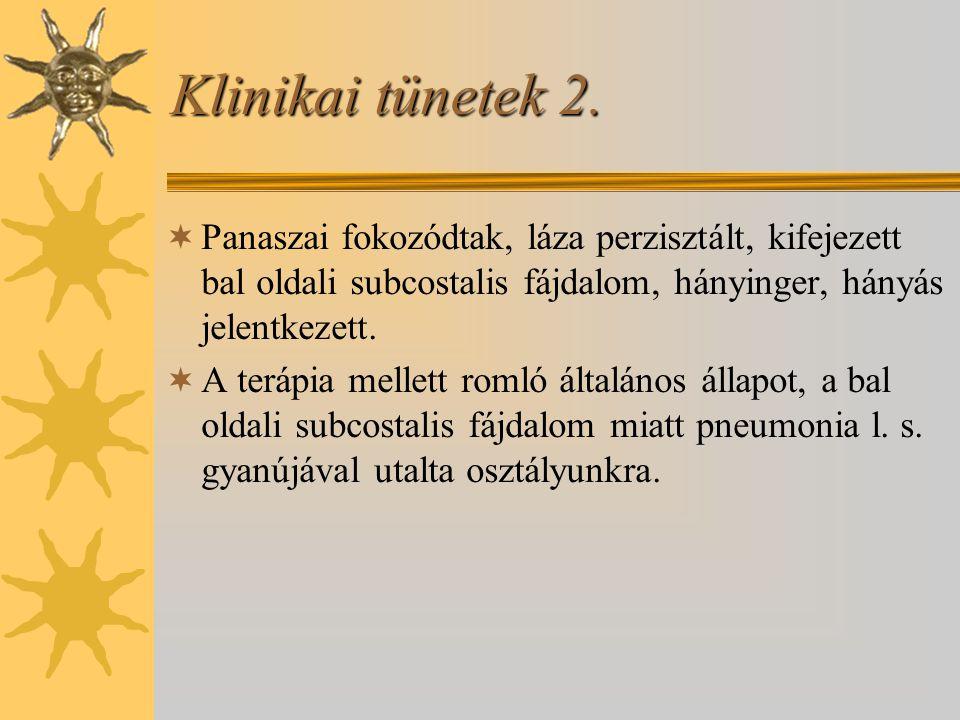 Klinikai tünetek 2.  Panaszai fokozódtak, láza perzisztált, kifejezett bal oldali subcostalis fájdalom, hányinger, hányás jelentkezett.  A terápia m