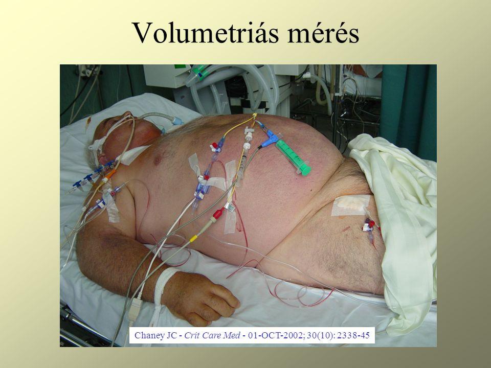 Volumetriás mérés Chaney JC - Crit Care Med - 01-OCT-2002; 30(10): 2338-45