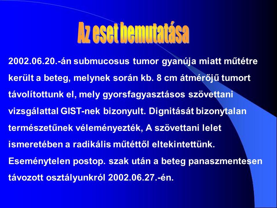 2002.06.20.-án submucosus tumor gyanúja miatt műtétre került a beteg, melynek során kb. 8 cm átmérőjű tumort távolítottunk el, mely gyorsfagyasztásos