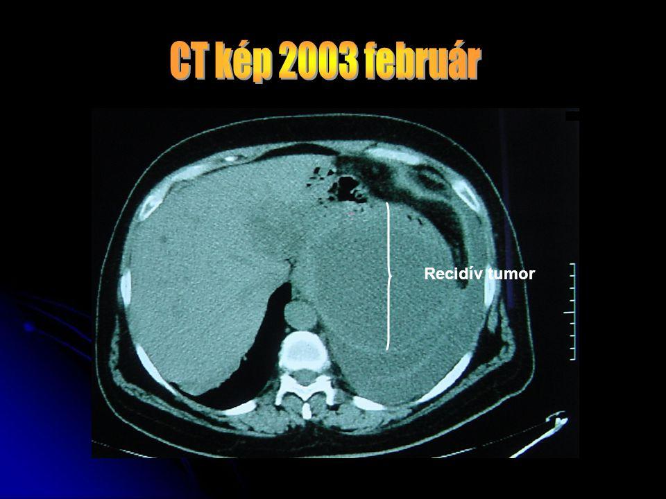 Recidív tumor
