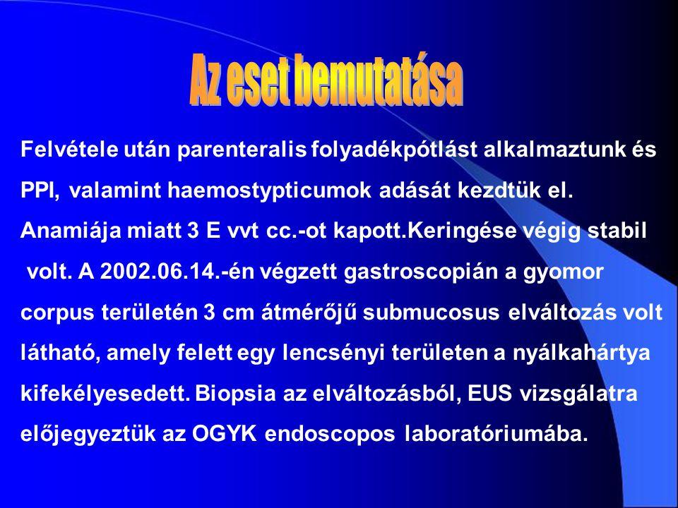 A gyomor corpusában a submucosa rétegében 9,1 cmx5 cm haránt átmérőjű echoszegény, solid elváltozás látható.