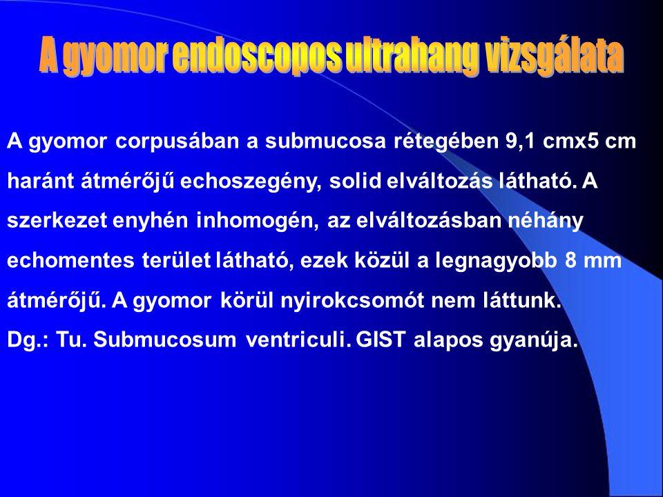A gyomor corpusában a submucosa rétegében 9,1 cmx5 cm haránt átmérőjű echoszegény, solid elváltozás látható. A szerkezet enyhén inhomogén, az elváltoz