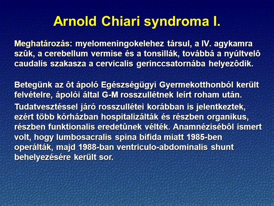 Arnold Chiari syndroma I.Meghatározás: myelomeningokelehez társul, a IV.
