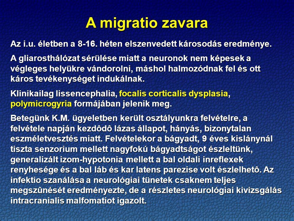A migratio zavara Az i.u.életben a 8-16. héten elszenvedett károsodás eredménye.