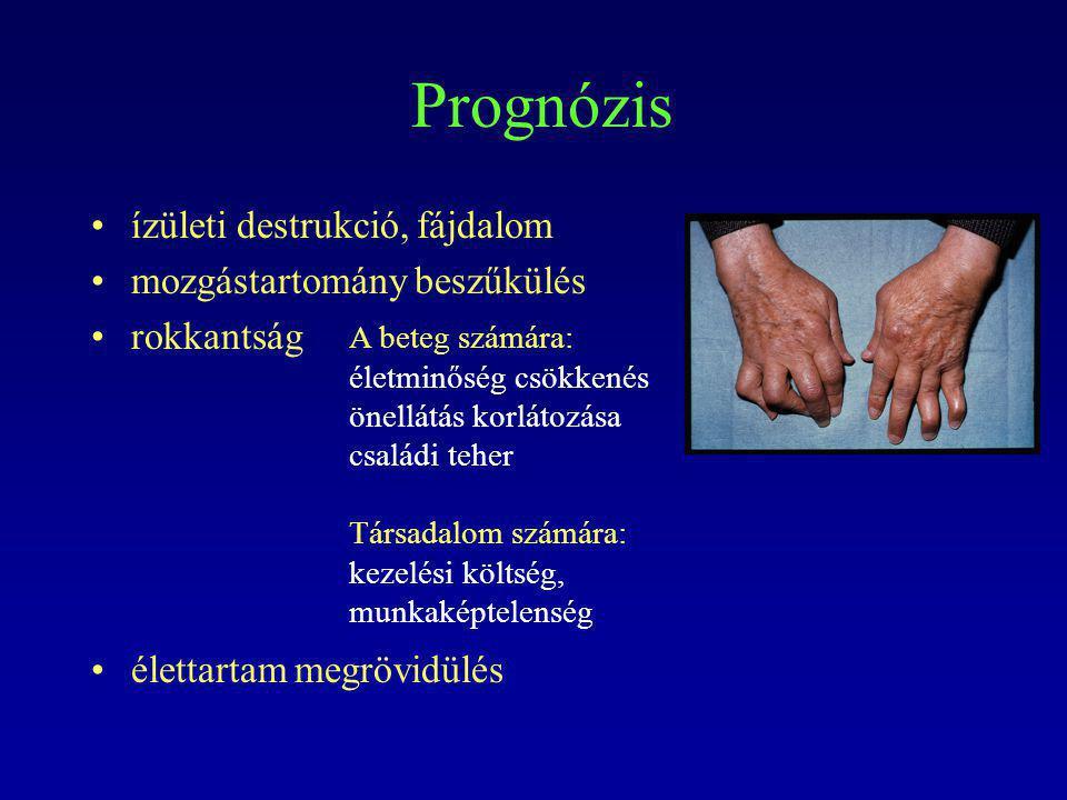 Prognózis ízületi destrukció, fájdalom mozgástartomány beszűkülés rokkantság élettartam megrövidülés A beteg számára: életminőség csökkenés önellátás