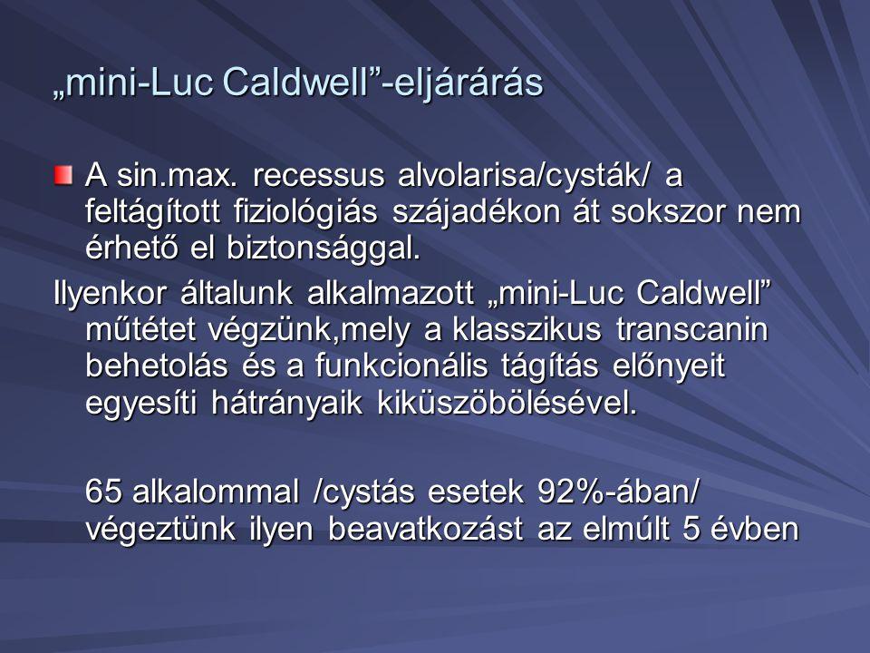 """""""mini-Luc Caldwell""""-eljárárás A sin.max. recessus alvolarisa/cysták/ a feltágított fiziológiás szájadékon át sokszor nem érhető el biztonsággal. Ilyen"""