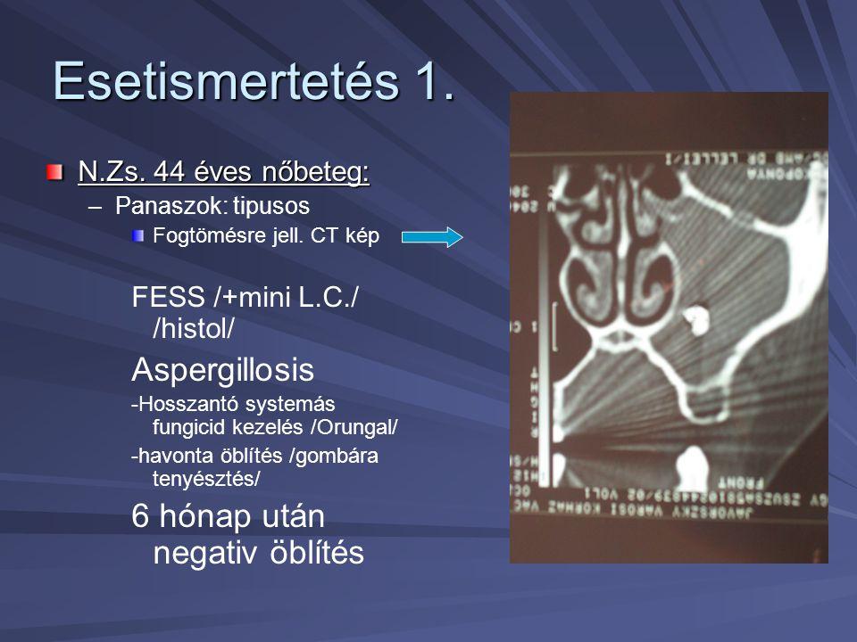 Esetismertetés 1. N.Zs. 44 éves nőbeteg: – –Panaszok: tipusos Fogtömésre jell. CT kép FESS /+mini L.C./ /histol/ Aspergillosis -Hosszantó systemás fun