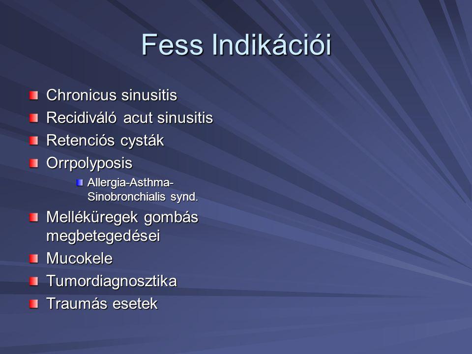 Fess Indikációi Chronicus sinusitis Recidiváló acut sinusitis Retenciós cysták Orrpolyposis Allergia-Asthma- Sinobronchialis synd. Melléküregek gombás