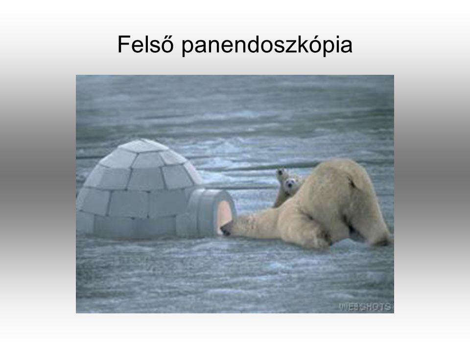 Felső panendoszkópia