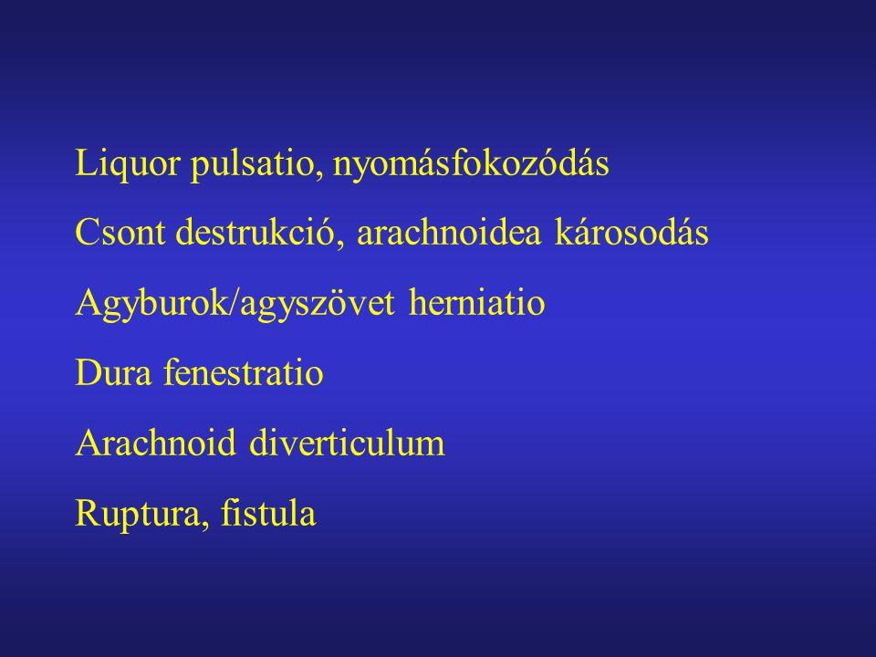 Liquor pulsatio, nyomásfokozódás Csont destrukció, arachnoidea károsodás Agyburok/agyszövet herniatio Dura fenestratio Arachnoid diverticulum Ruptura,