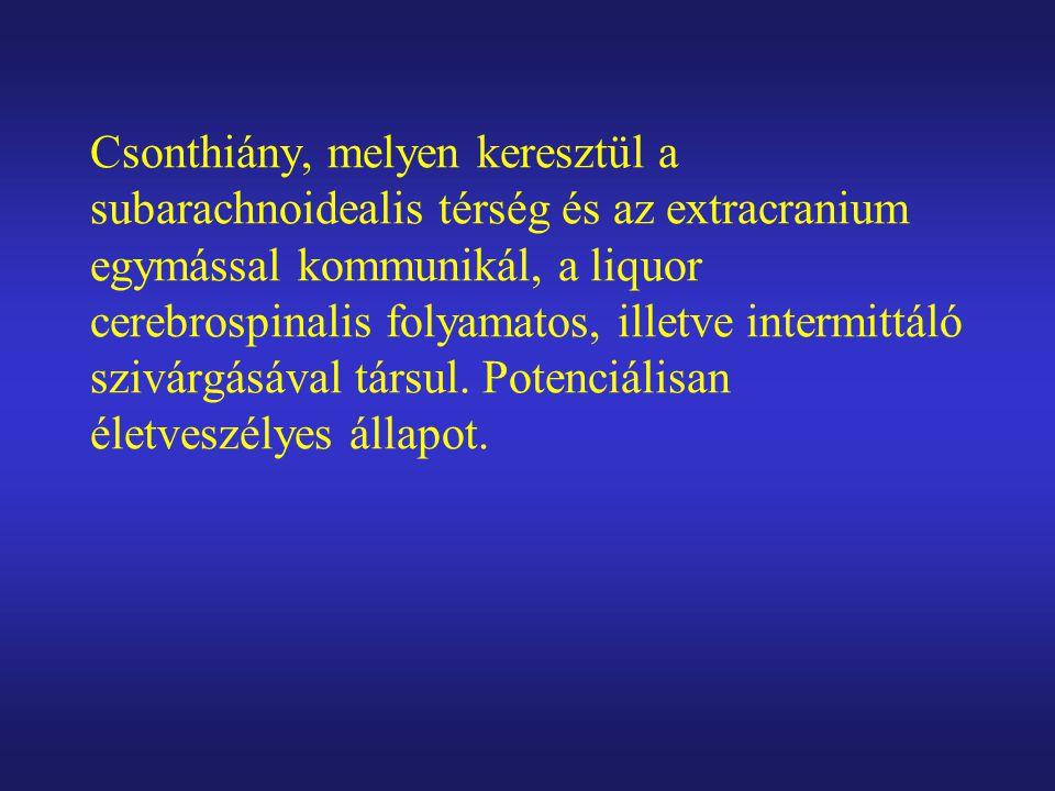 Liquor pulsatio, nyomásfokozódás Csont destrukció, arachnoidea károsodás Agyburok/agyszövet herniatio Dura fenestratio Arachnoid diverticulum Ruptura, fistula