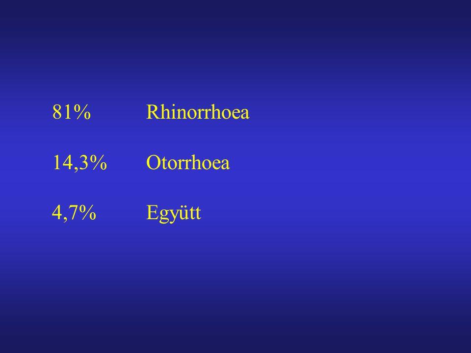 81% Rhinorrhoea 14,3%Otorrhoea 4,7%Együtt