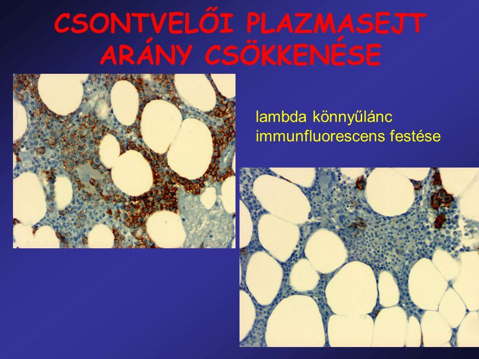 CSONTVELŐI PLAZMASEJT ARÁNY CSÖKKENÉSE lambda könnyűlánc immunfluorescens festése