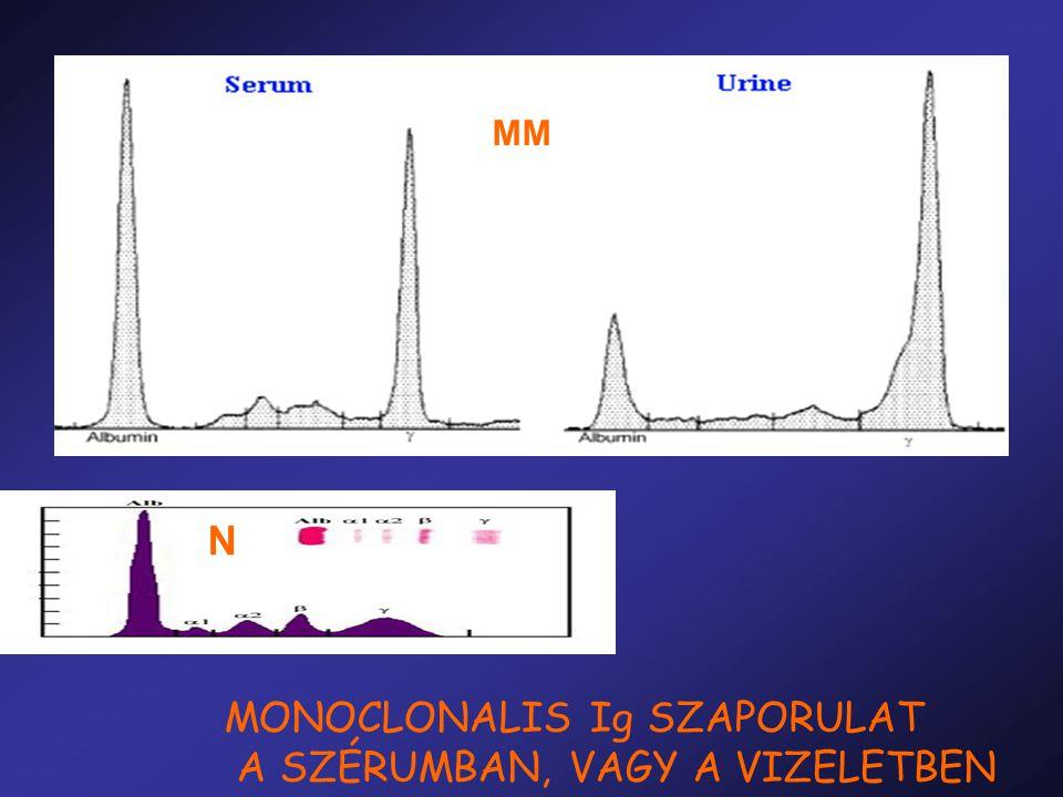 MONOCLONALIS Ig SZAPORULAT A SZÉRUMBAN, VAGY A VIZELETBEN MM N