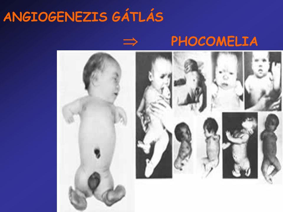 ANGIOGENEZIS GÁTLÁS  PHOCOMELIA
