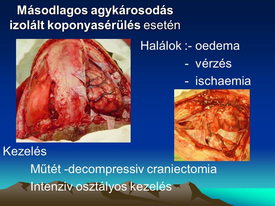 Másodlagos agykárosodás izolált koponyasérülés esetén Halálok :-oedema -vérzés -ischaemia Kezelés Műtét -decompressiv craniectomia Intenziv osztályos