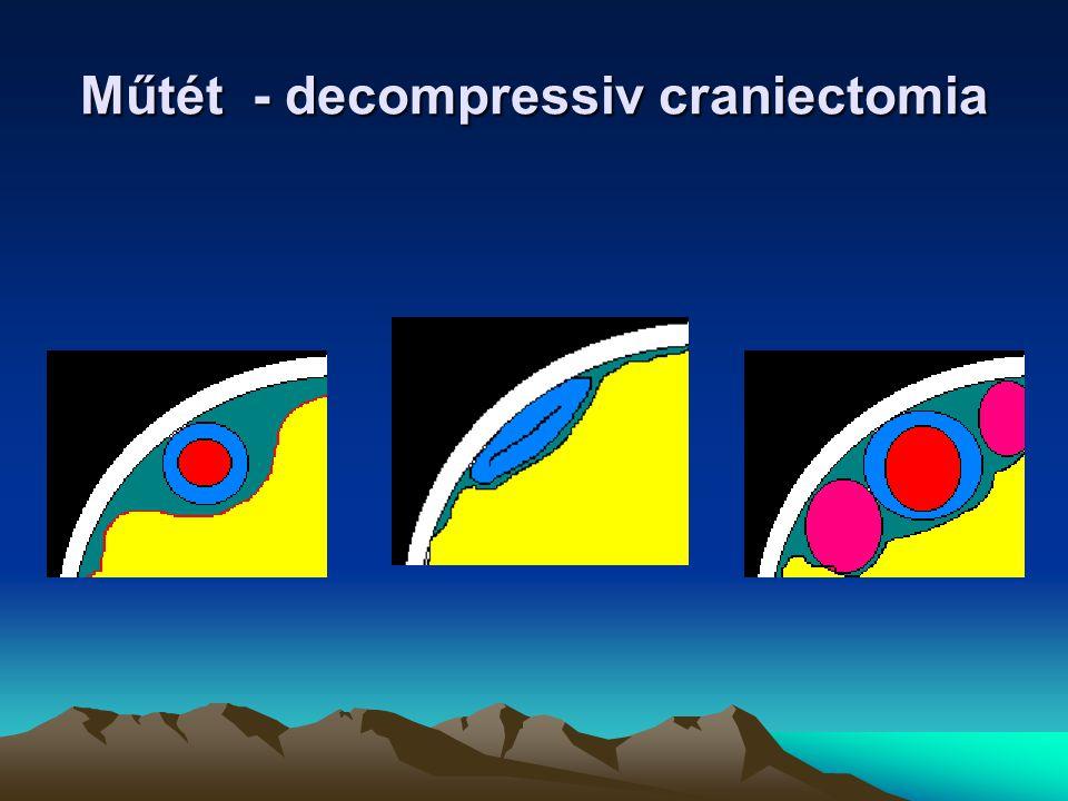 Műtét - decompressiv craniectomia