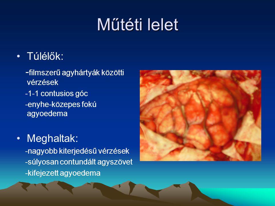 Műtéti lelet Túlélők: - filmszerű agyhártyák közötti vérzések -1-1 contusios góc -enyhe-közepes fokú agyoedema Meghaltak: -nagyobb kiterjedésű vérzése