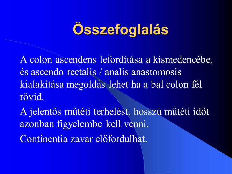 Összefoglalás A colon ascendens lefordítása a kismedencébe, és ascendo rectalis / analis anastomosis kialakítása megoldás lehet ha a bal colon fél röv
