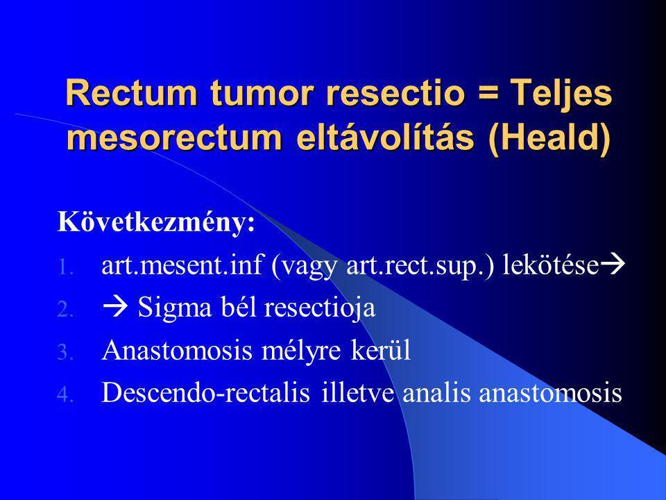Rectum tumor resectio = Teljes mesorectum eltávolítás (Heald) Következmény: 1. art.mesent.inf (vagy art.rect.sup.) lekötése  2.  Sigma bél resectioj