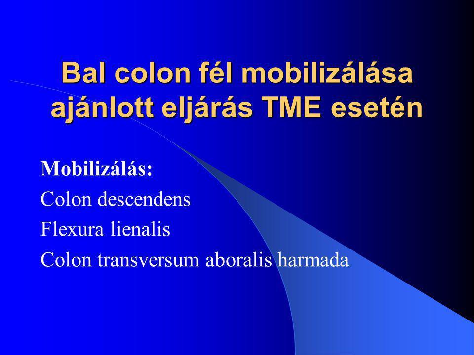 Bal colon fél mobilizálása ajánlott eljárás TME esetén Mobilizálás: Colon descendens Flexura lienalis Colon transversum aboralis harmada