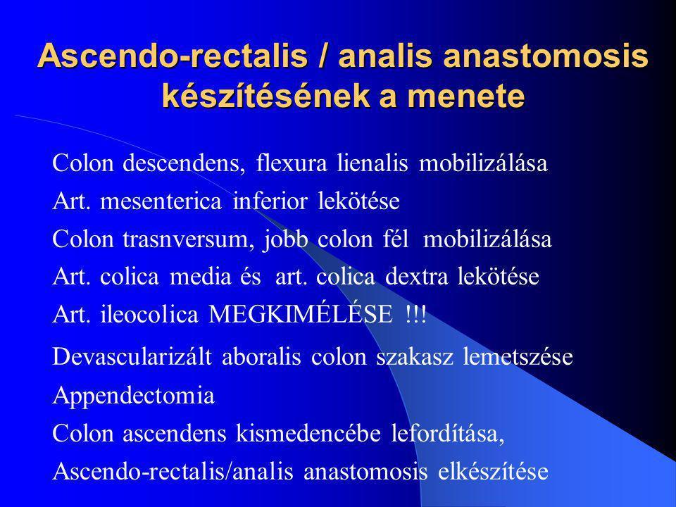 Ascendo-rectalis / analis anastomosis készítésének a menete Colon descendens, flexura lienalis mobilizálása Art. mesenterica inferior lekötése Colon t