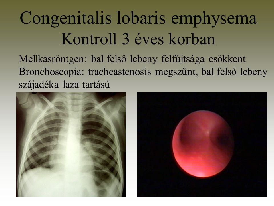 Congenitalis lobaris emphysema Kontroll 3 éves korban Mellkasröntgen: bal felső lebeny felfújtsága csökkent Bronchoscopia: tracheastenosis megszűnt, b