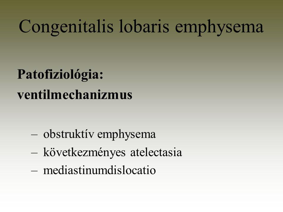 Patofiziológia: ventilmechanizmus – obstruktív emphysema – következményes atelectasia – mediastinumdislocatio Congenitalis lobaris emphysema
