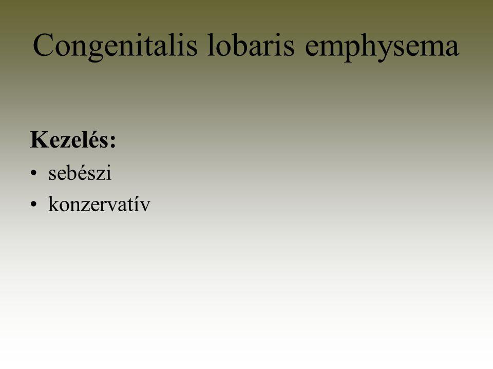 Congenitalis lobaris emphysema Kezelés: sebészi konzervatív