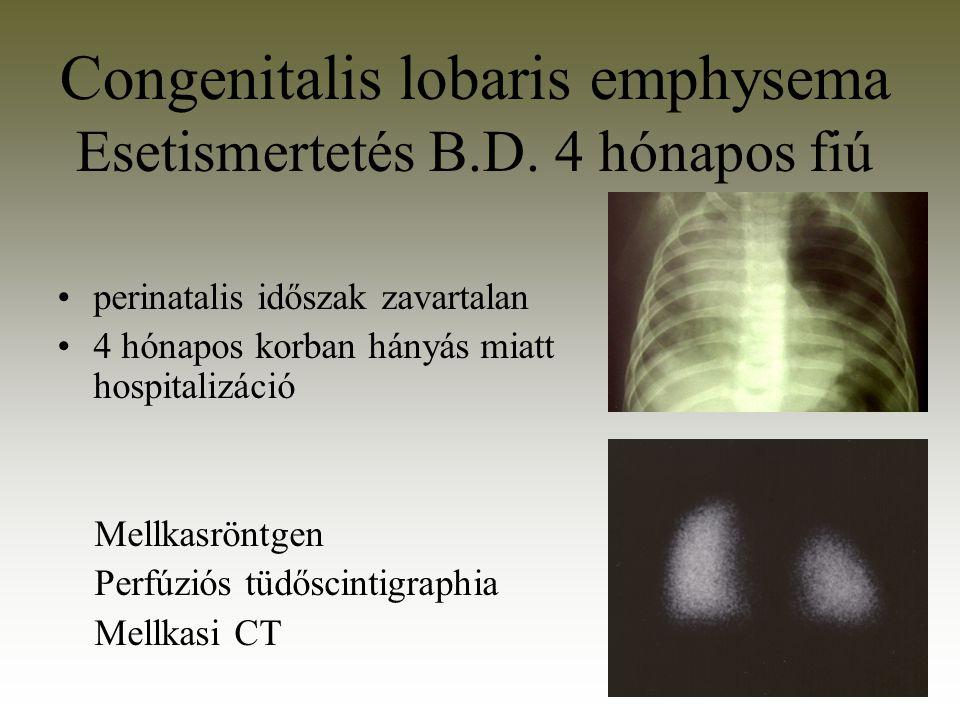 perinatalis időszak zavartalan 4 hónapos korban hányás miatt hospitalizáció Mellkasröntgen Perfúziós tüdőscintigraphia Mellkasi CT Congenitalis lobari