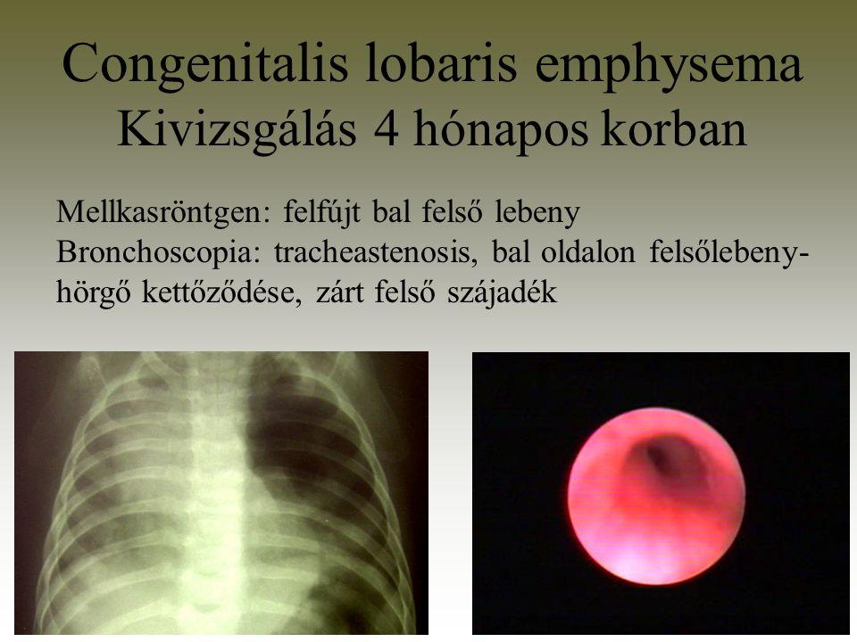 Congenitalis lobaris emphysema Kivizsgálás 4 hónapos korban Mellkasröntgen: felfújt bal felső lebeny Bronchoscopia: tracheastenosis, bal oldalon felső