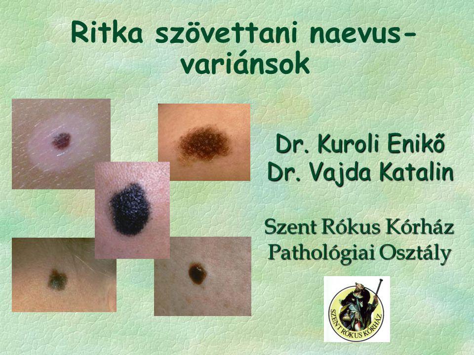 Ritka szövettani naevus- variánsok Dr. Kuroli Enikő Dr. Vajda Katalin Szent Rókus Kórház Pathológiai Osztály