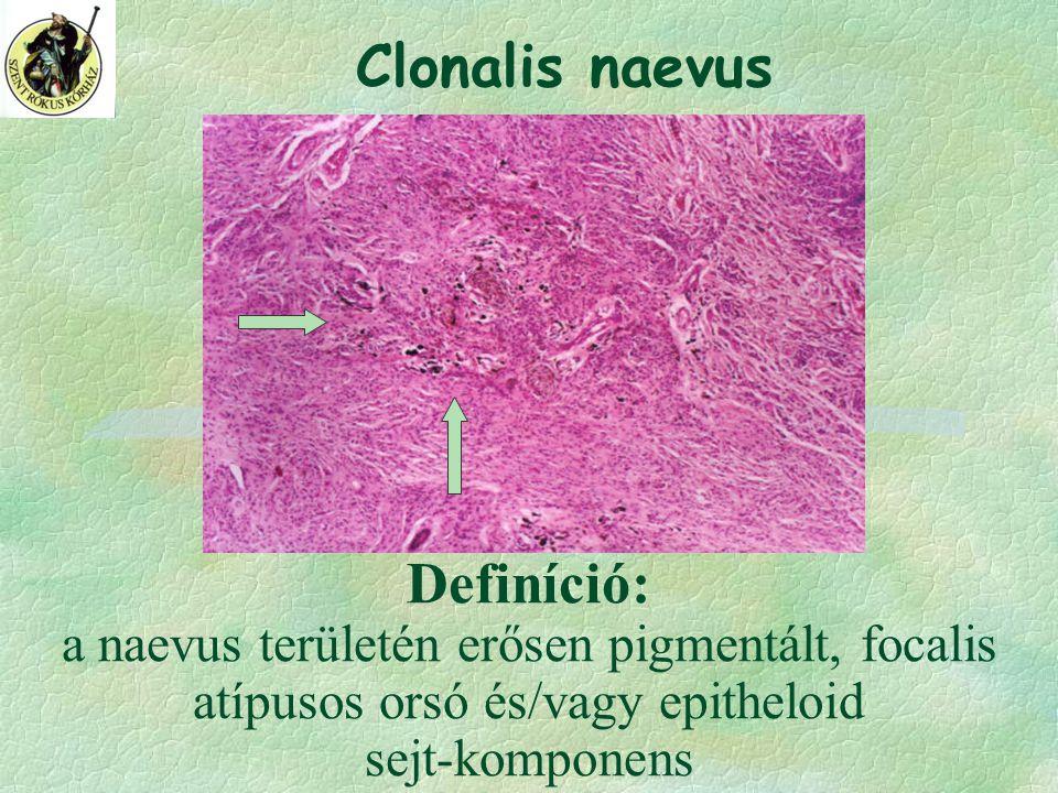 Definíció: a naevus területén erősen pigmentált, focalis atípusos orsó és/vagy epitheloid sejt-komponens Clonalis naevus