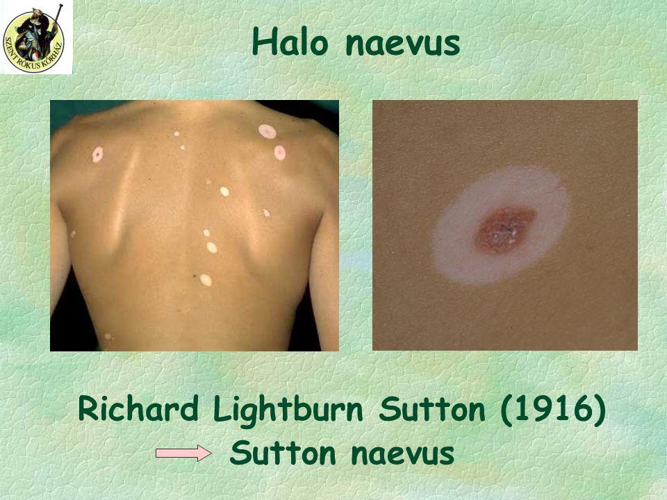 Halo naevus Richard Lightburn Sutton (1916) Sutton naevus