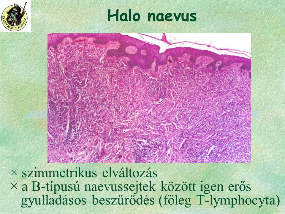 × szimmetrikus elváltozás × a B-típusú naevussejtek között igen erős gyulladásos beszűrődés (főleg T-lymphocyta) Halo naevus