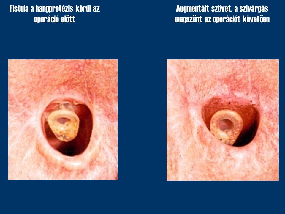 Fistula a hangprotézis körül az operáció előtt Augmentált szövet, a szivárgás megszűnt az operációt követően