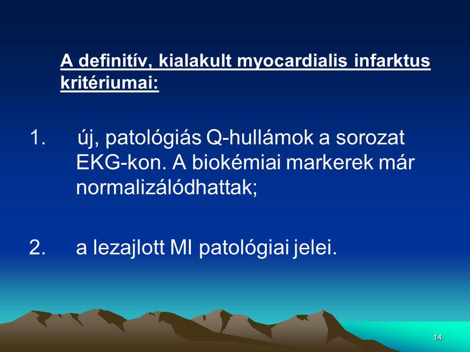 14 A definitív, kialakult myocardialis infarktus kritériumai: 1.