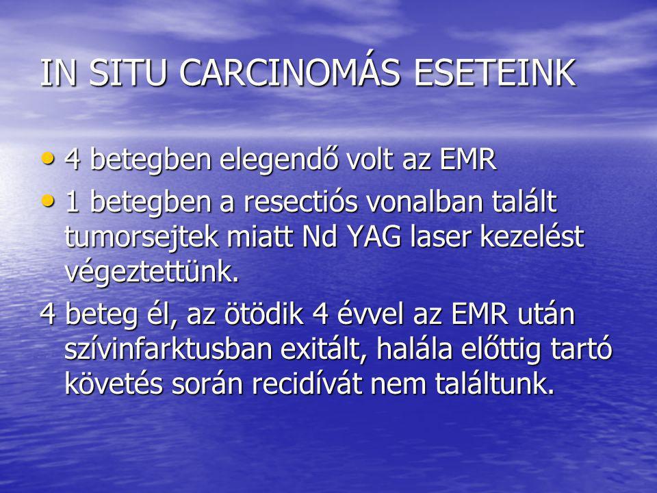 Vastagbél vizsgálat eredménye mucosectomiás eseteinkben EMR hyperplasticus polypust igazolt: negativ: 2 EMR hyperplasticus polypust igazolt: negativ: 2 adenoma/ák:3 adenoma/ák:3 carcinoma: 1 carcinoma: 1 coloscopia nem volt: 10 coloscopia nem volt: 10 EMR adenomát mutatott: negatív: 1 EMR adenomát mutatott: negatív: 1 adenoma/ák: 5 adenoma/ák: 5 carcinoma:2 carcinoma:2 coloscopia nem volt: 16 coloscopia nem volt: 16 EMR carcinomát, carcinoidot, GIST-et talált: EMR carcinomát, carcinoidot, GIST-et talált: negatív: 1 negatív: 1 colitis ulcerosa: 1 colitis ulcerosa: 1 nem volt coloscopia: 4 nem volt coloscopia: 4
