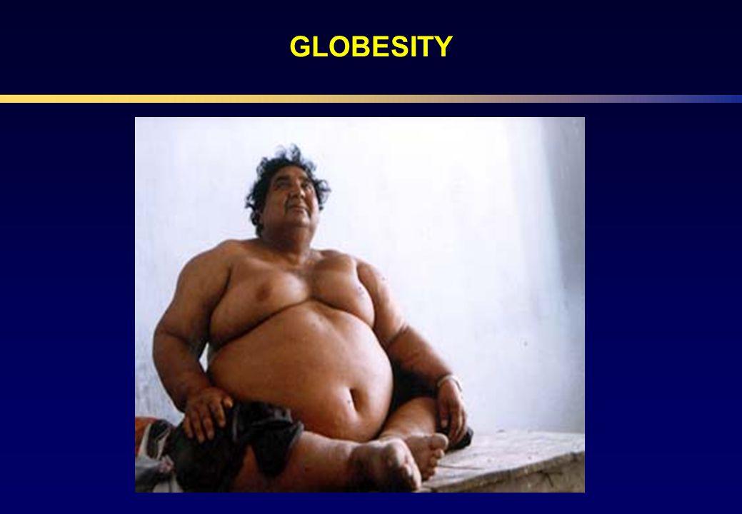 A HbA 1c csökkentése a szövődmények csökkenésével jár együtt Diabétesz eredetű halál* 21% Stratton IM et al.